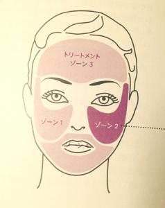 トリアスキンエイジングレーザーの顔へ照射する時の分割の仕方
