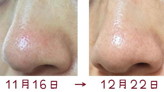 トレチノインで鼻の毛穴はどれくらい改善したか