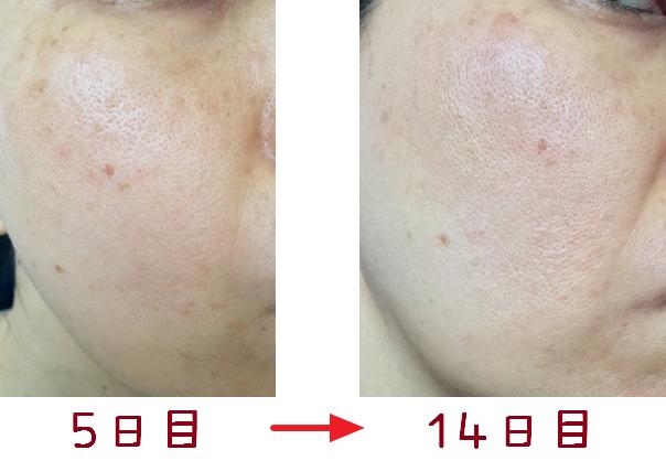トレチノインハイドロキノンでの治療経過画像5日目と14日目比較右顔